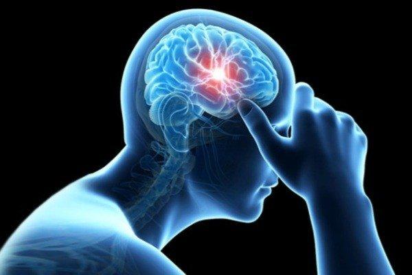 دکتر امیررضا قایقران متخصص مغز و اعصاب نورولوژی در رشت